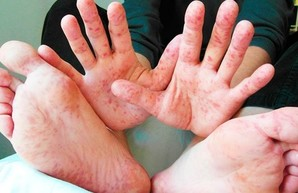 Корь на Харьковщине: За неделю заболели более 150 человек