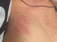 Так выглядит синяк Швайки от дубинки правоохранителей/ ФОТО