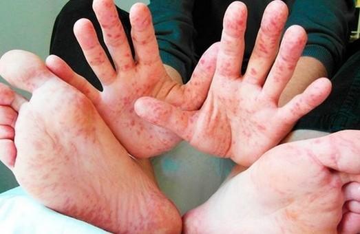 В Харькове - новые случаи заболевания корью